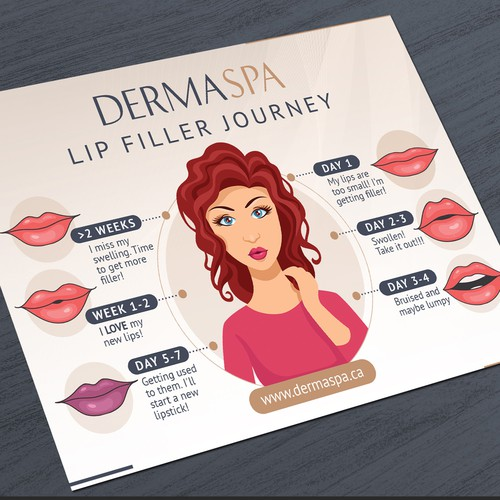 Lip Filler Journey Infographic for DermaSpa