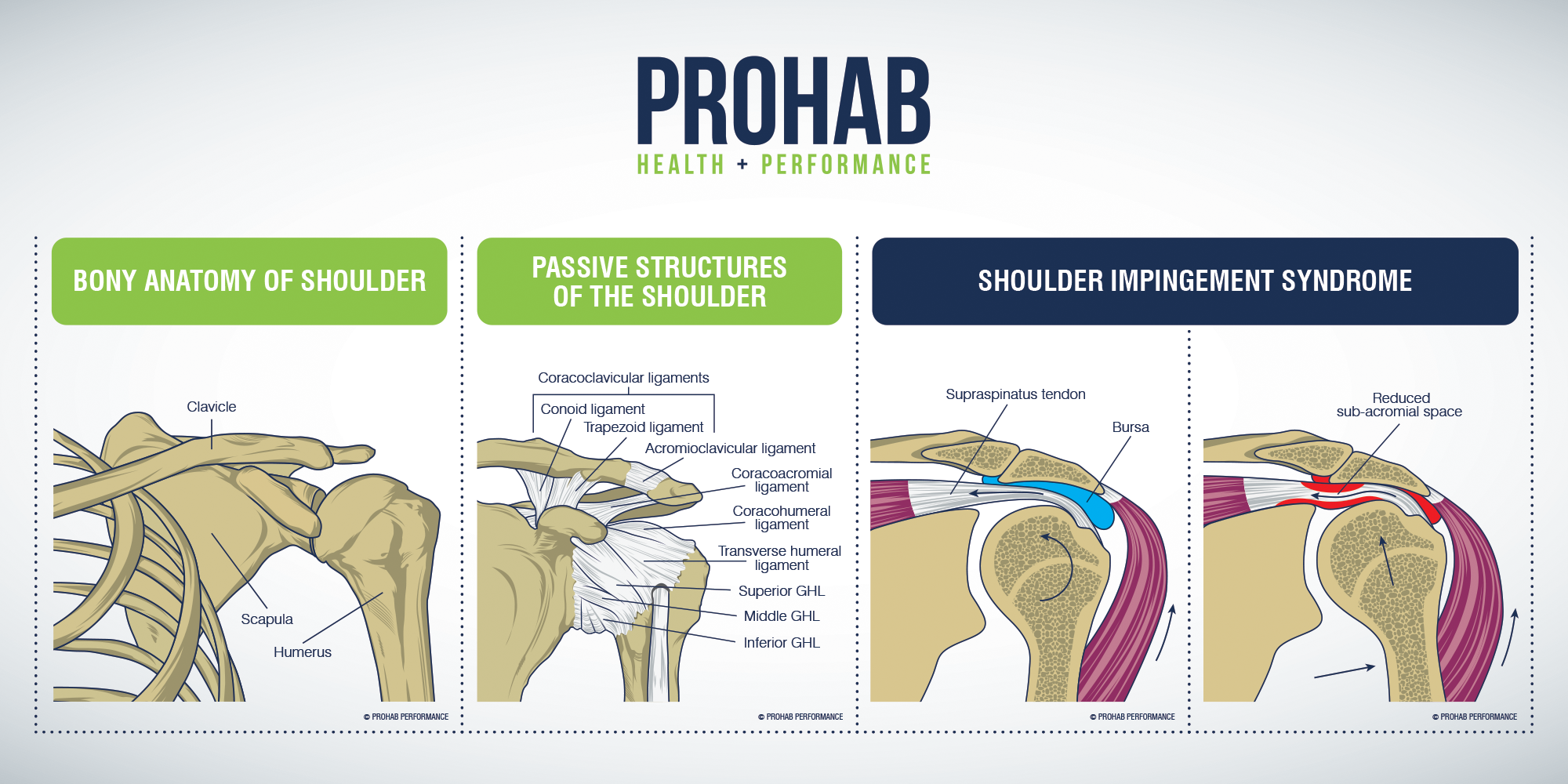 Demystify shoulder pain with a beautiful graphic
