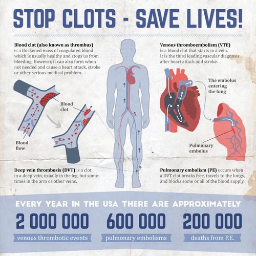 Blood clot infographic