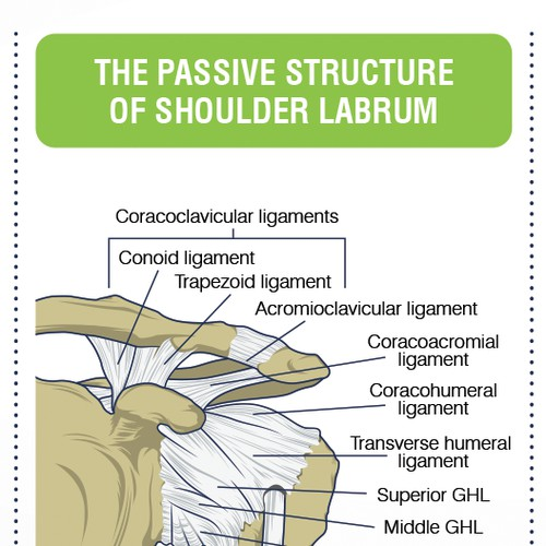 Shoulder Pain Graphic