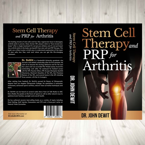 Stem Cell Therapy and PRP for Arthritis