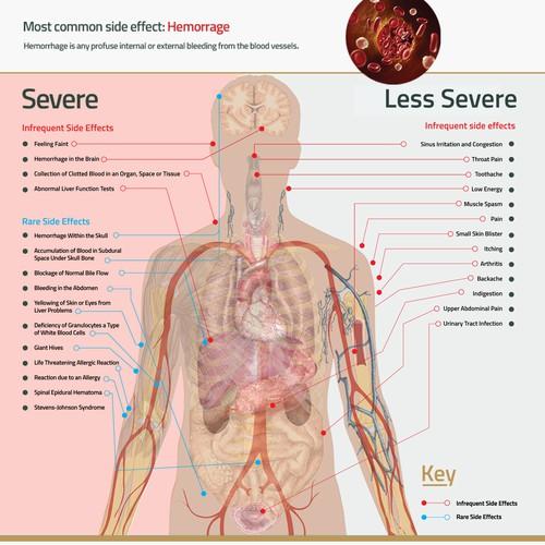 Infographic concept for xarelto