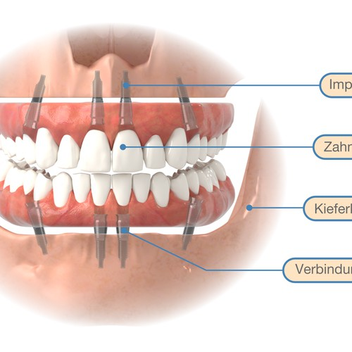 Graphics for implantology