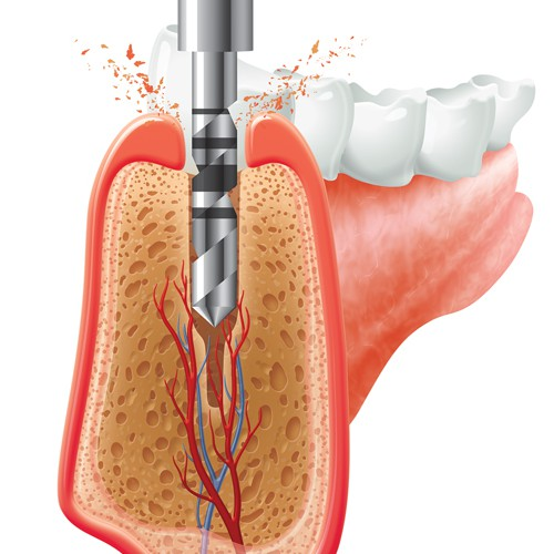 Dental Illustration.