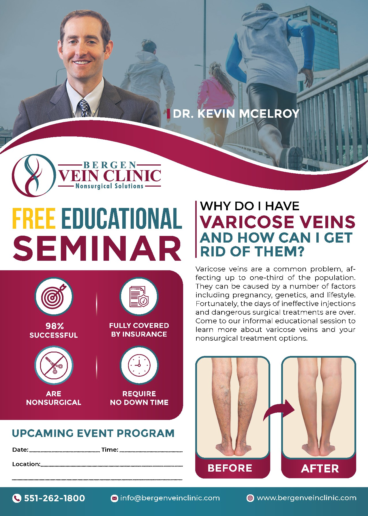 Varicose vein treatment flyer to appeal to women