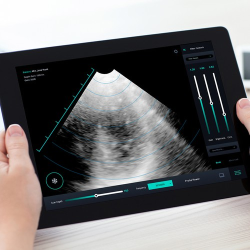 Teleosonic Ultrasound App UI UX Design for the Next Generation of Ultrasound Technology