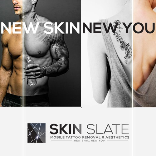 Skin Slate - Mobile tattoo removal & aeshetics