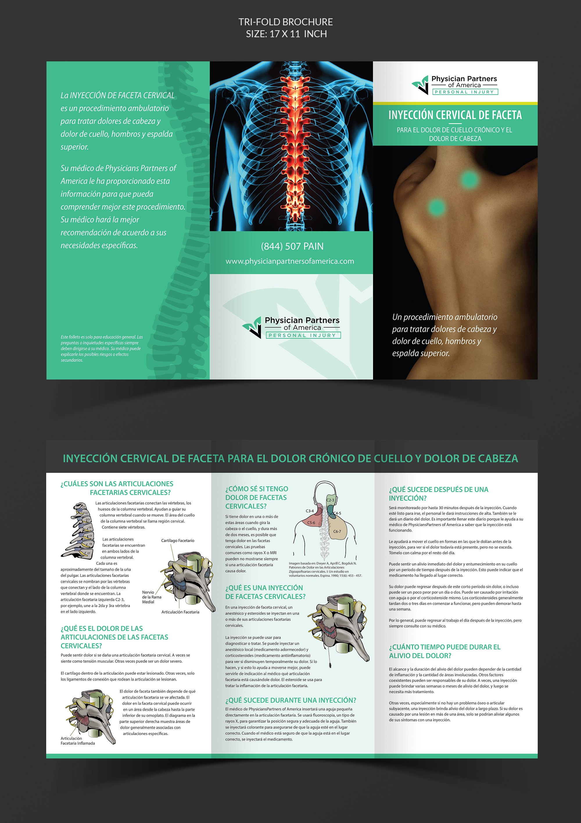 Cervical Facet Injections - Spanish
