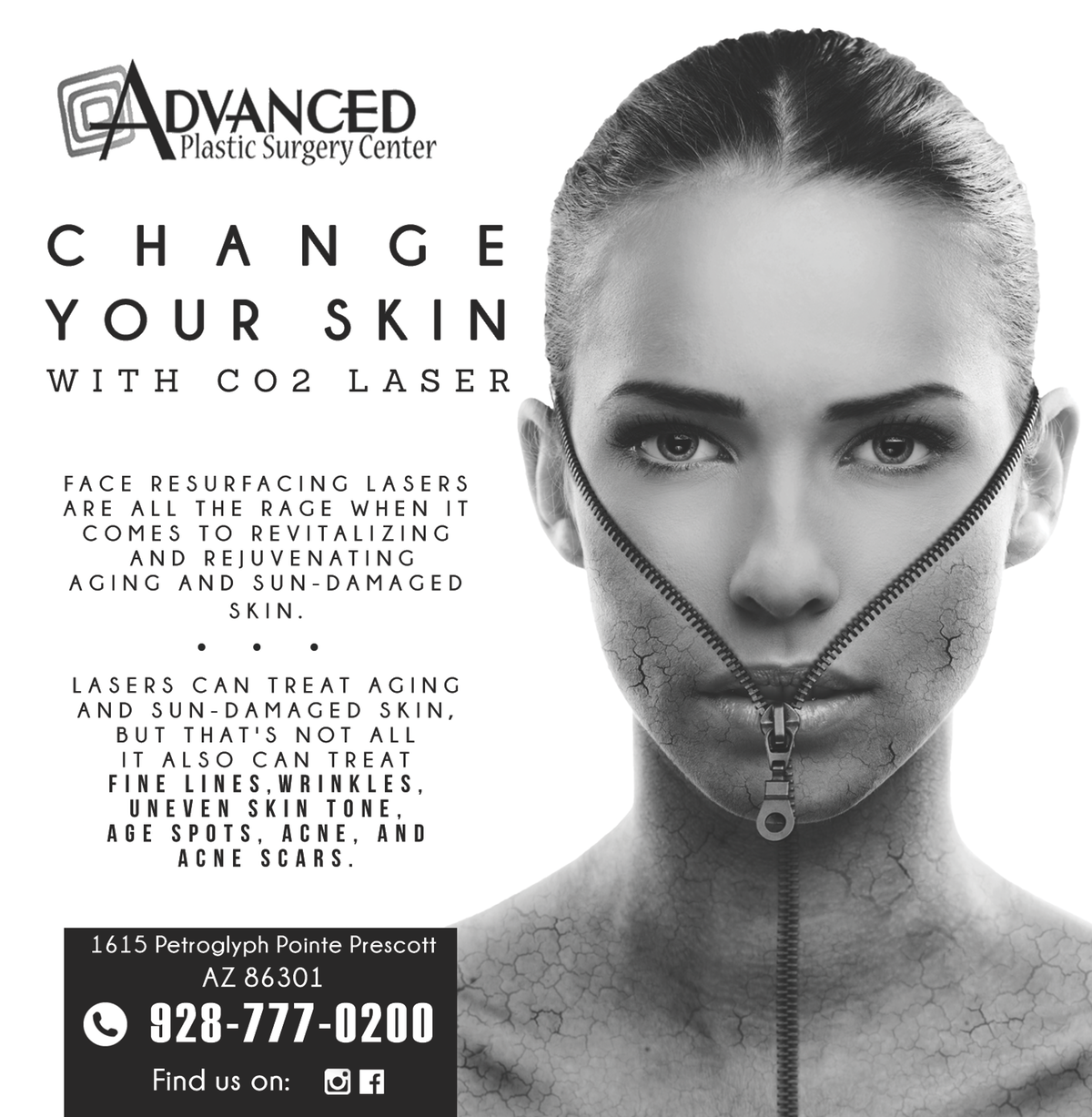 News Paper Add for CO2 Ablative Laser Resurfacing