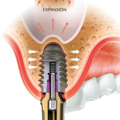 Dental Infographic. Maxillary Posterior.