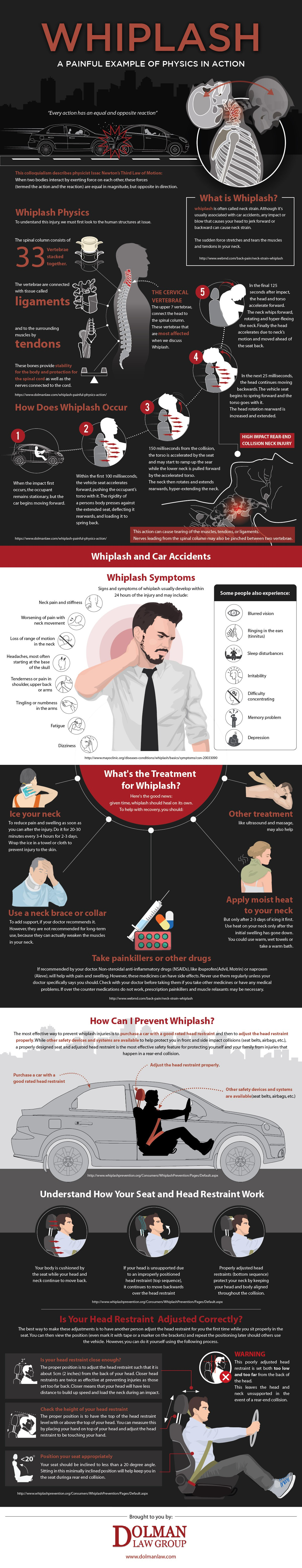 Create an Infographic on Whiplash